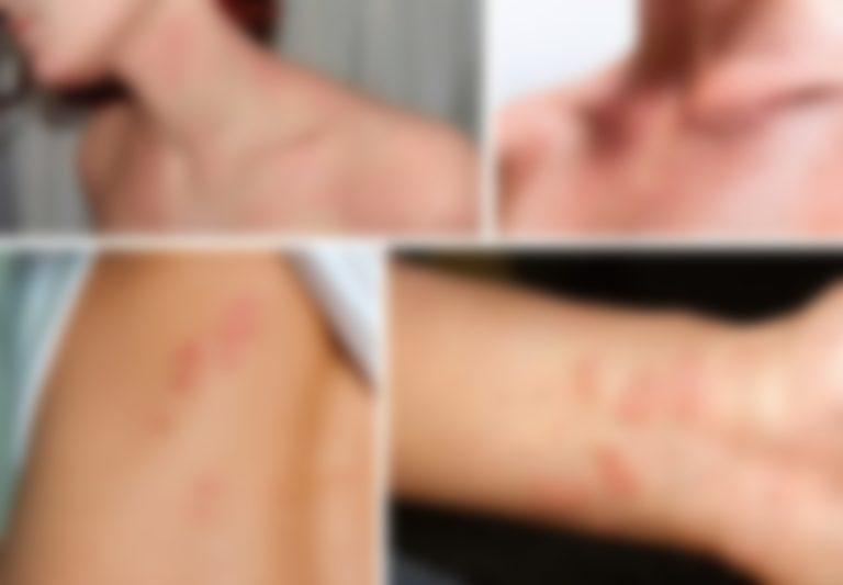 Красные пятна на теле у взрослого чем лечить