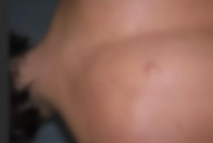 Шишка на ноге под кожей болит при нажатии на него