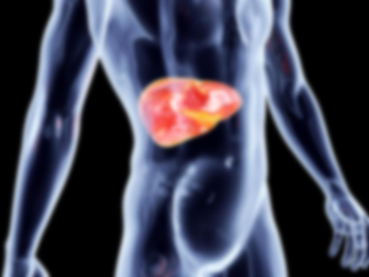 Жировой гепатоз печени симптомы и лечение прогноз
