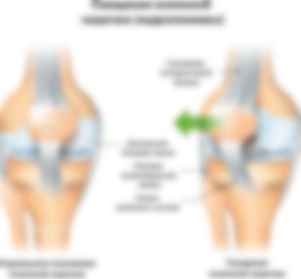 При беге болит левое колено