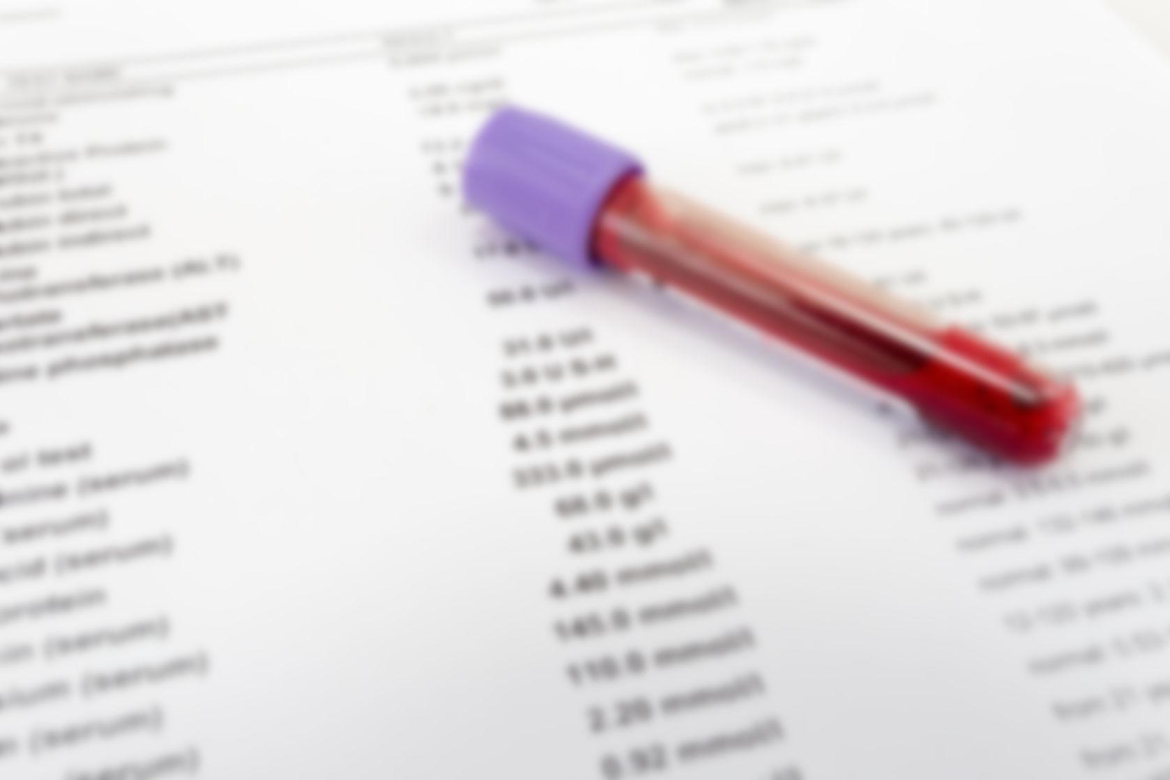 Можно по общему анализу крови определить рак