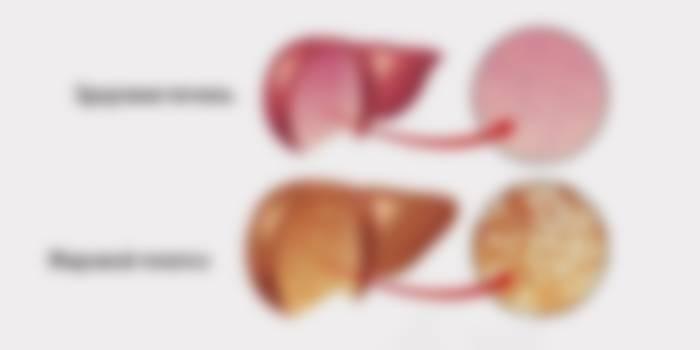 Гепатоз признаки симптомы