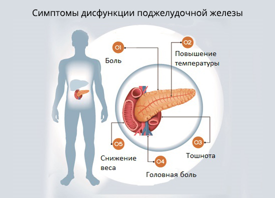 Панкреатит где находится поджелудочная железа фото