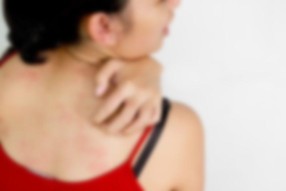 Красные пятна после аллергии у детей