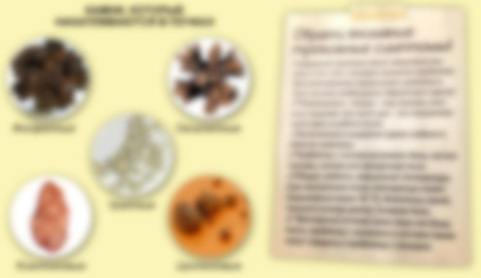 Как определить какой вид камней в почках