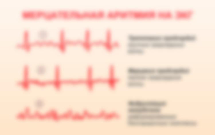 Что провоцирует аритмию сердца