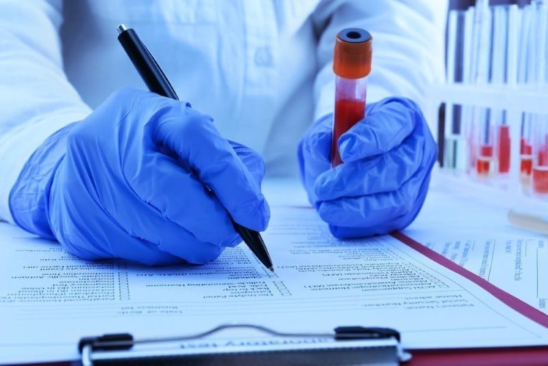 Перед сдачей анализа крови на гормоны
