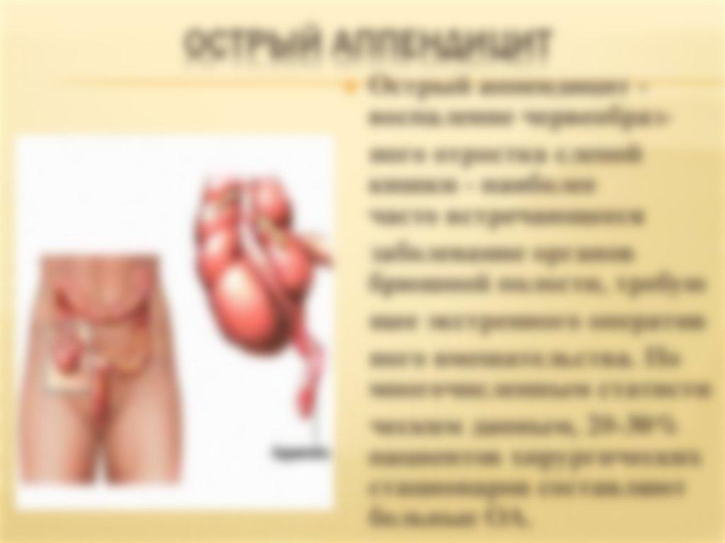 Картинки аппендицит