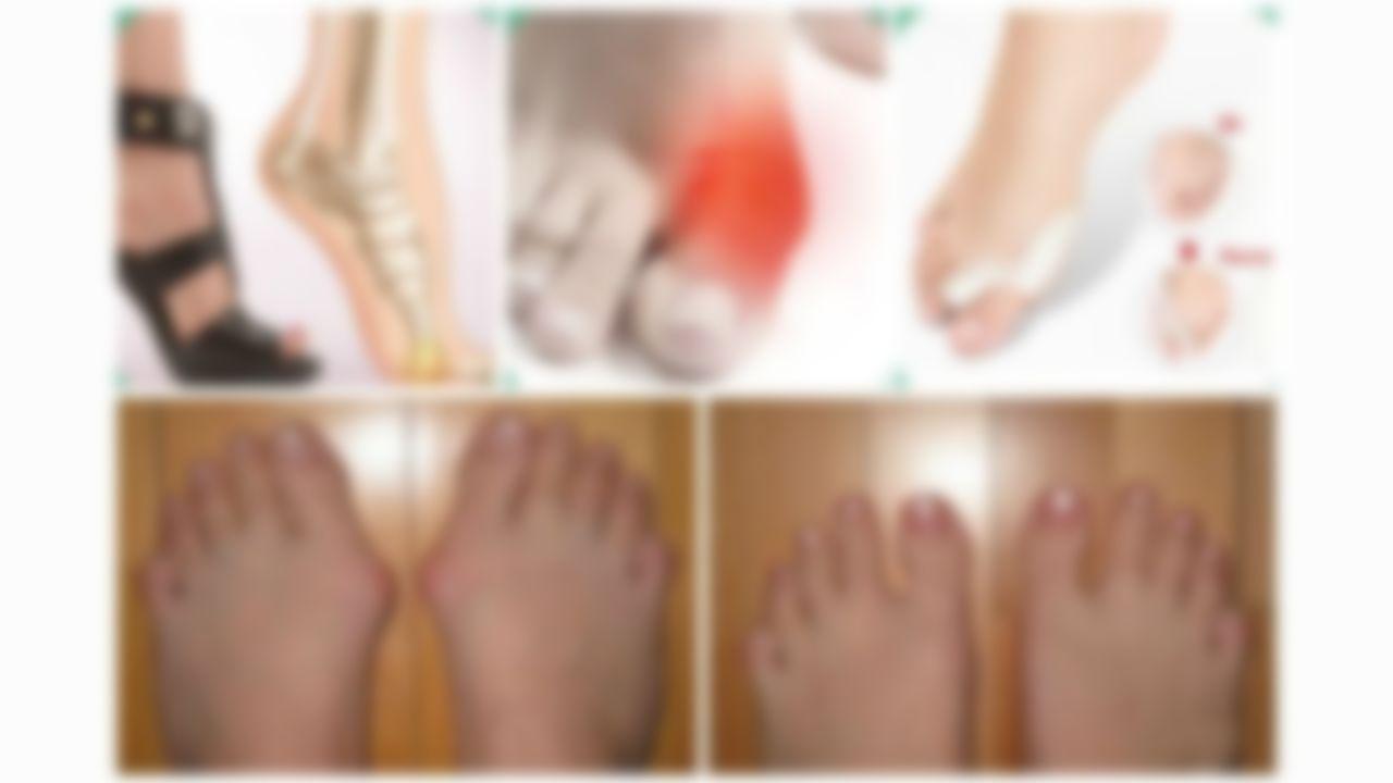 Шишки на пальцах ног как вылечить