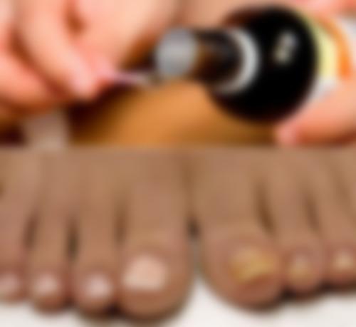 Грибок ноктя