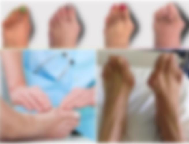 Шишки на фалангах пальцев ног