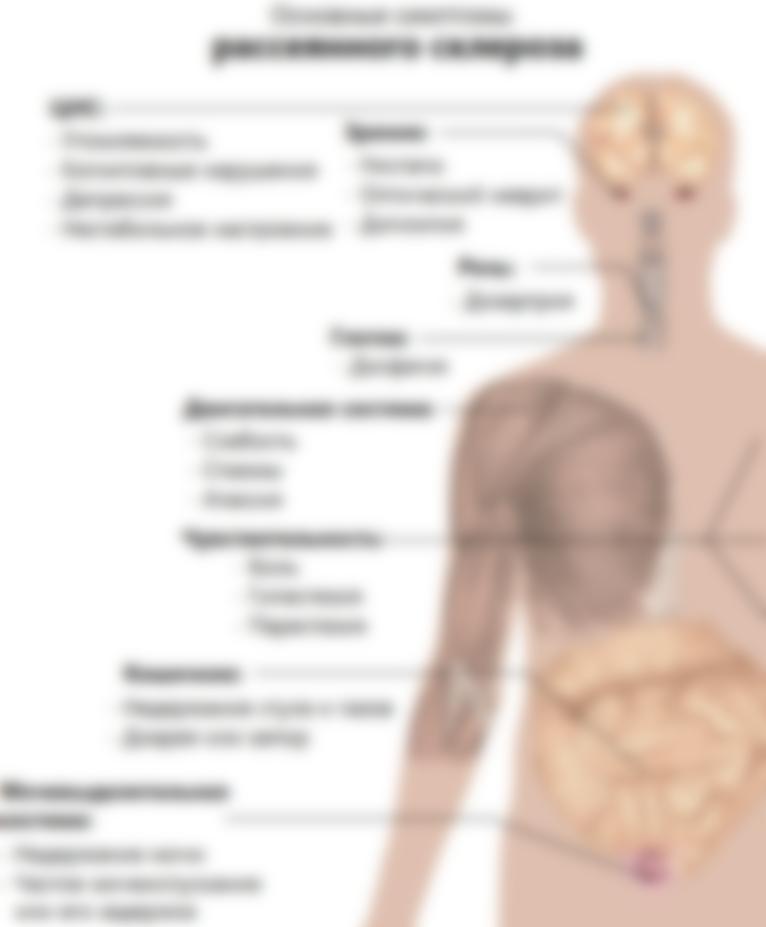 Рассеянный склероз симптомы лечение причины возникновения