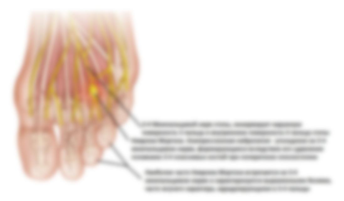 Неврома стопы симптомы