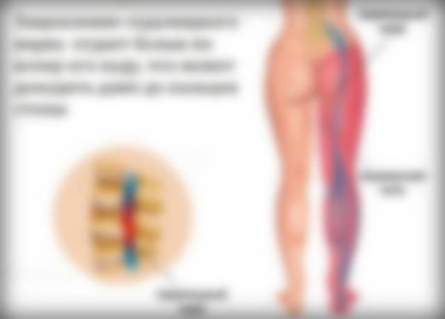 чем лечить боль под коленом спереди путают свое