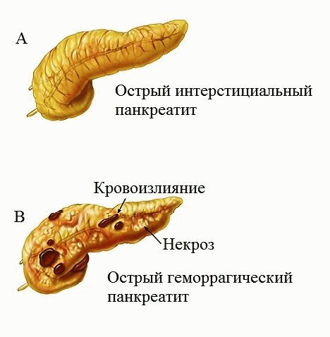 Синдромы панкреатита у мужчин