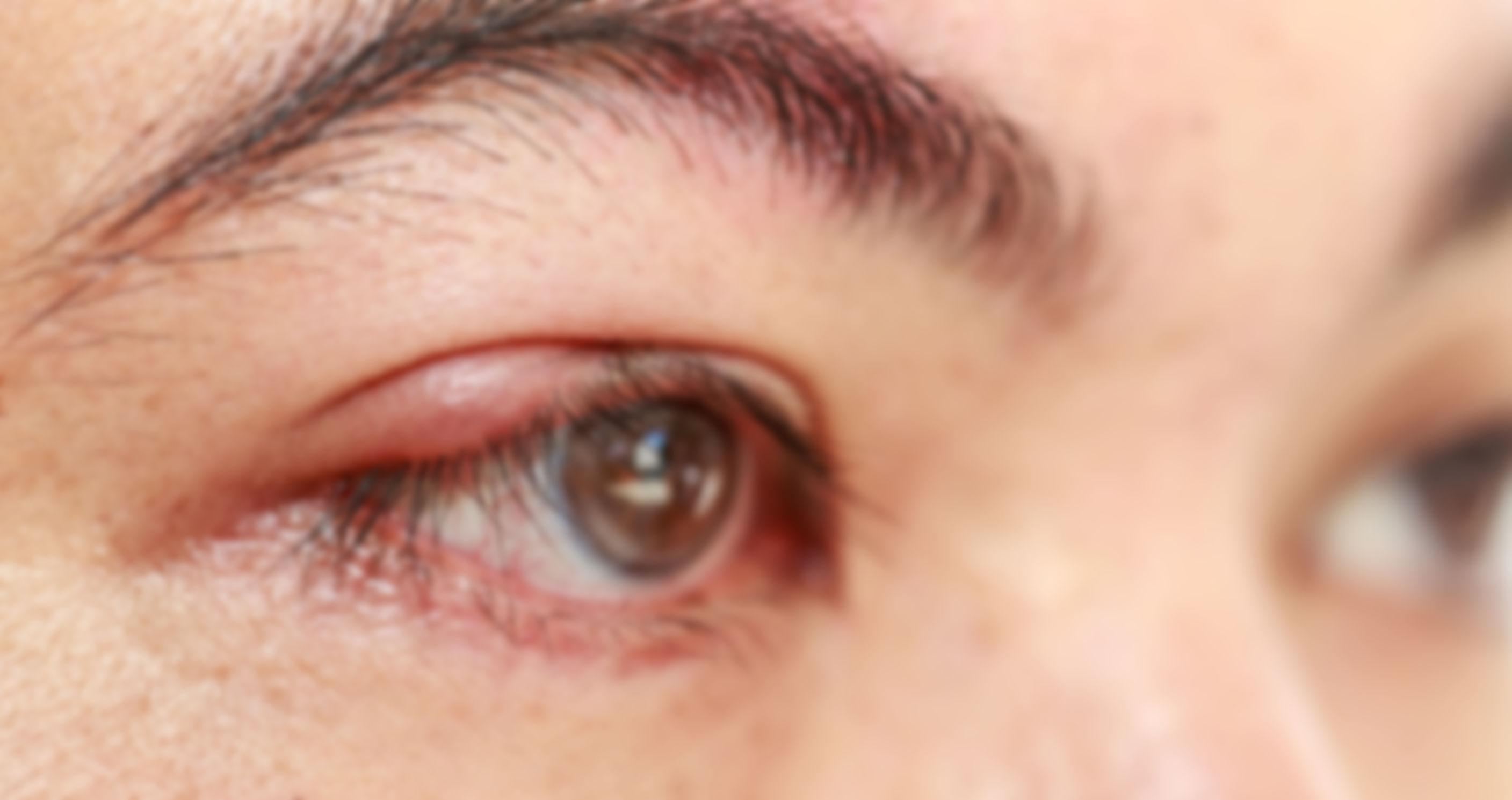 Ячмень на глазу: лечение лекарствами, причины и симптомы — как лечить ячмень на глазу (фото)
