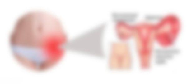 Как лечить воспаление яичников в домашних условиях
