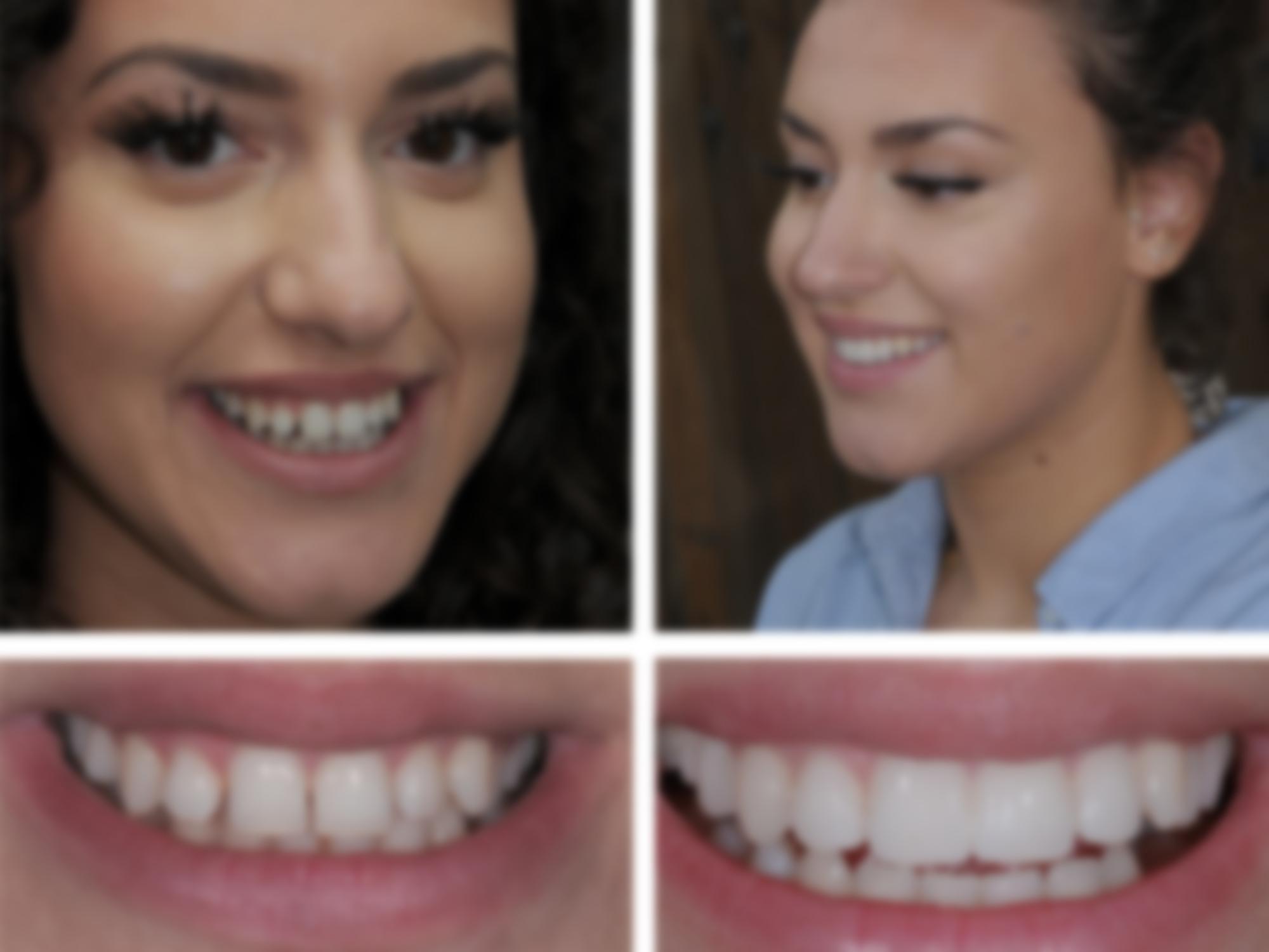 год фото зубов с винирами модель