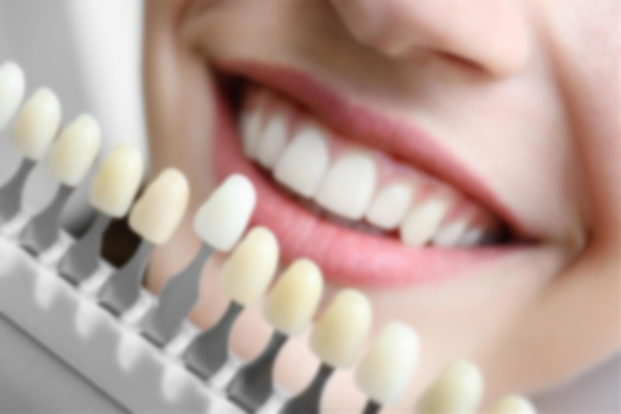Как крепятся виниры на зубы