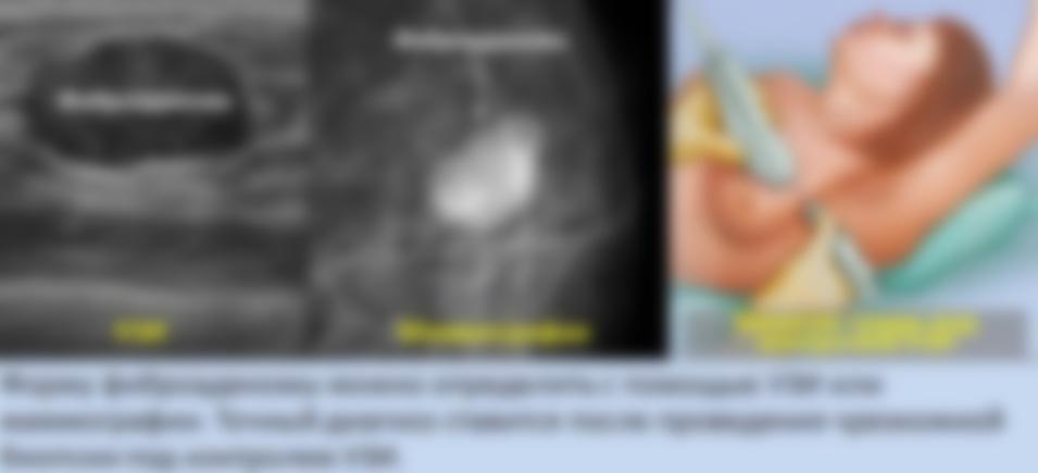 Фиброаденома фото до и после 43
