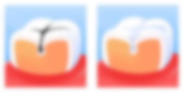 Вздутие живота боли в правом боку причины и лечение