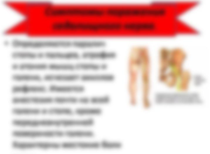 Лечение остеохондроза мовалис уколы