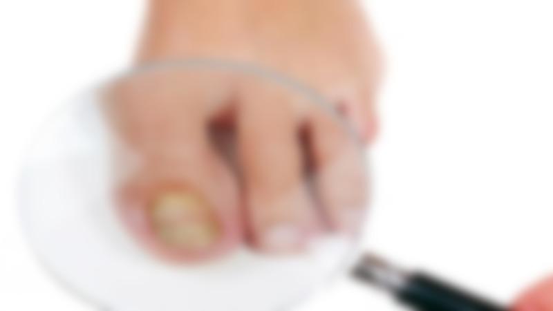 Экзодерил против грибка ногтей