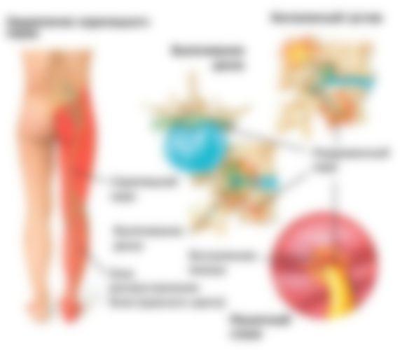 Какие мази при остеопорозе