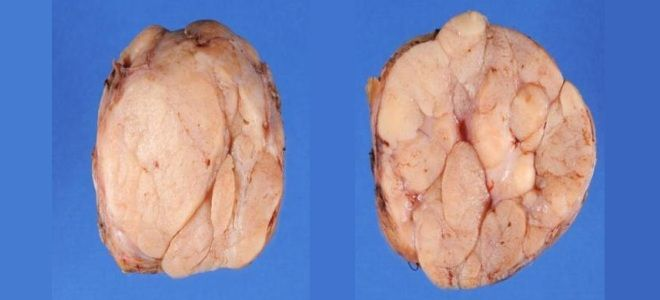 Фиброаденома фото до и после 45