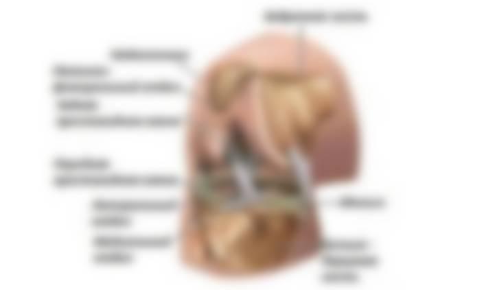 это боли в коленях при приседании лечение