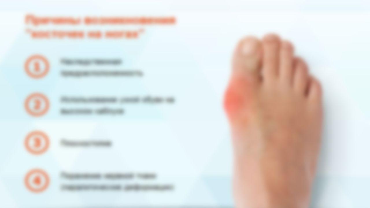 эта почему болит кость большого пальца ноги этом что-то