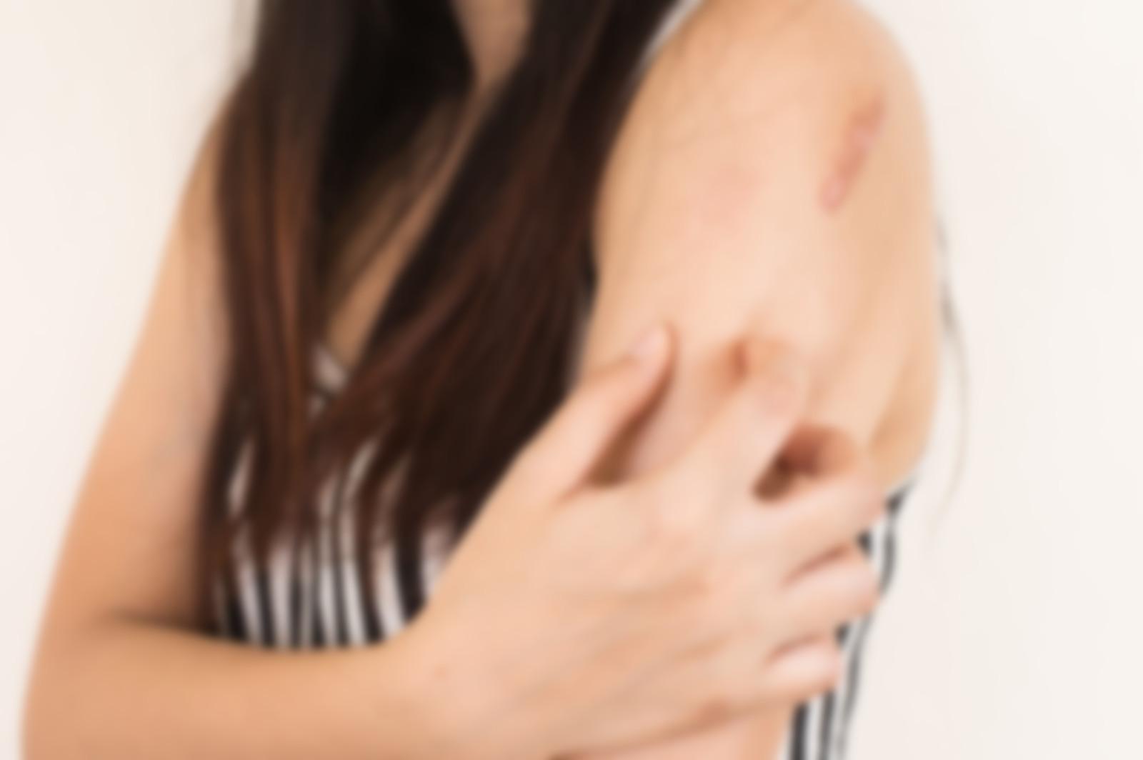 Стригущий лишай у человека - фото, симптомы, лечение