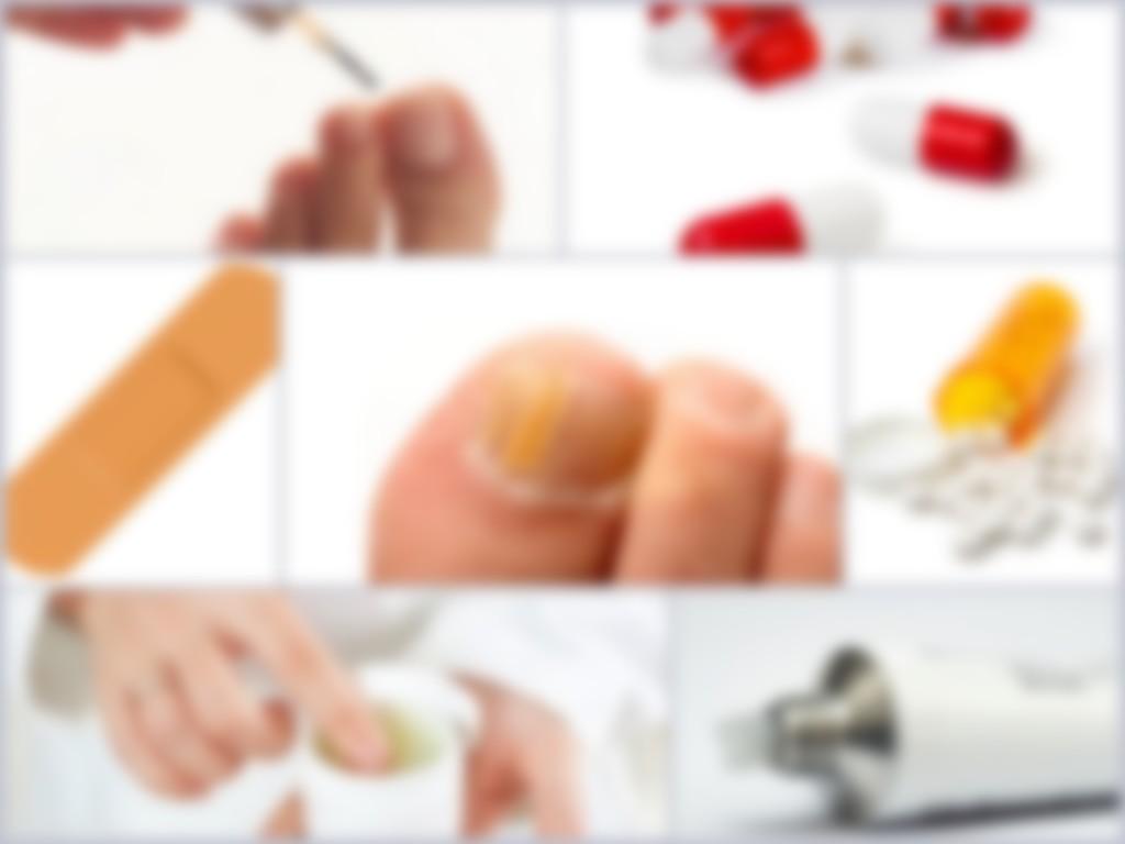 Эффективные недорогие средства от грибка ногтей на ногах. Обзор, список и отзывы