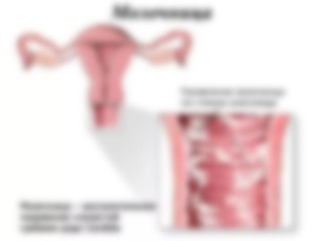 Почему возникает молочница у женщин и девушек причины возникновения