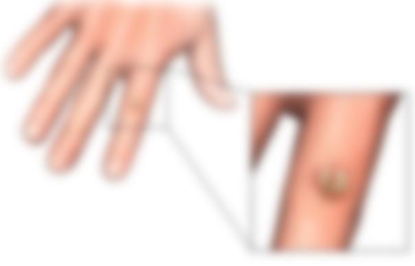 Удаление бородавки на пальце руки 5