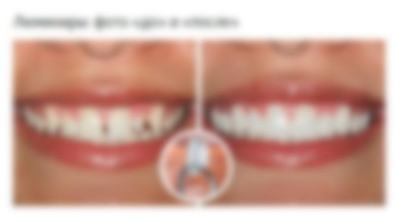 Винир зуб минус