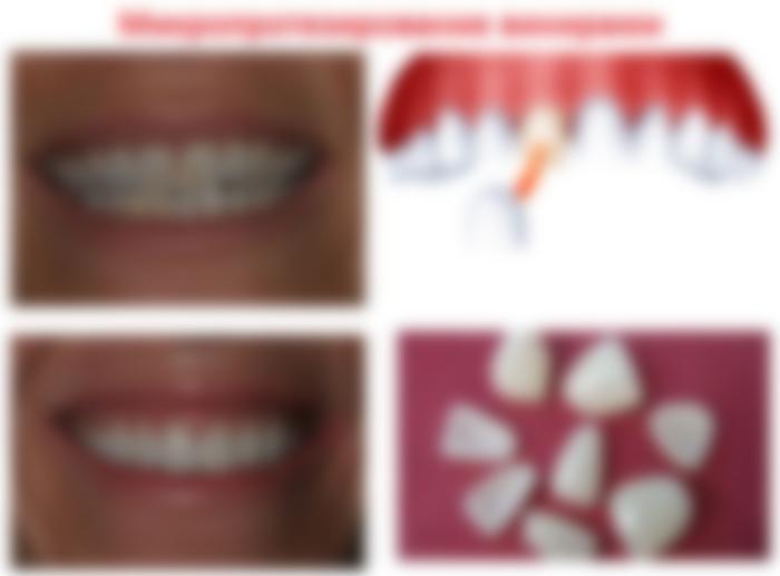 Виниры на зубы цена мурманск