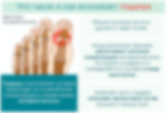 Деформирующий артроз стоп 2 степени лечение