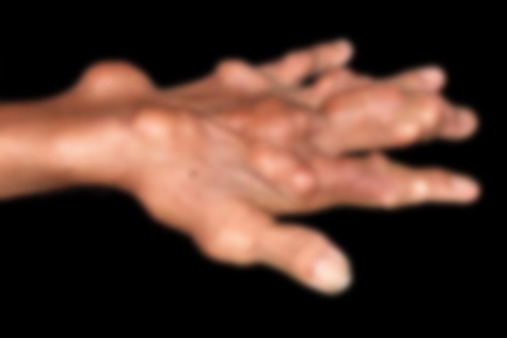 Лечение лавровым листом при артрозе