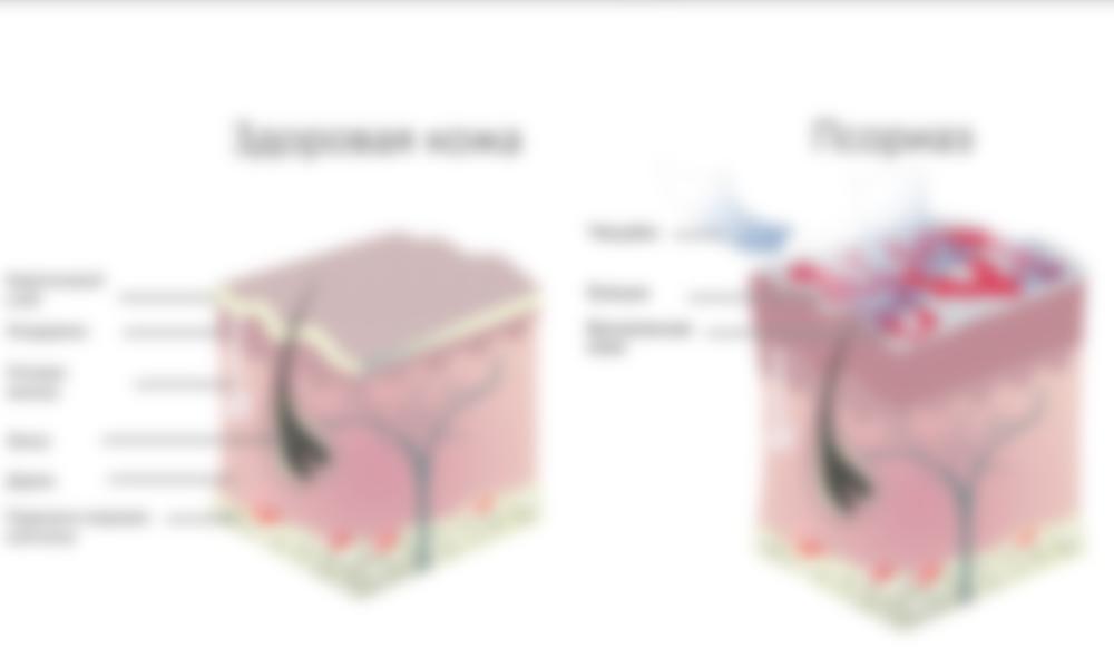 Чем лечить псориаз в домашних условиях препараты и народные рецепты