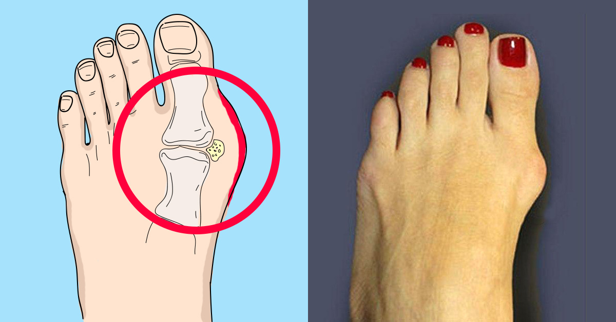 что артрит шишка на ноге блестящая