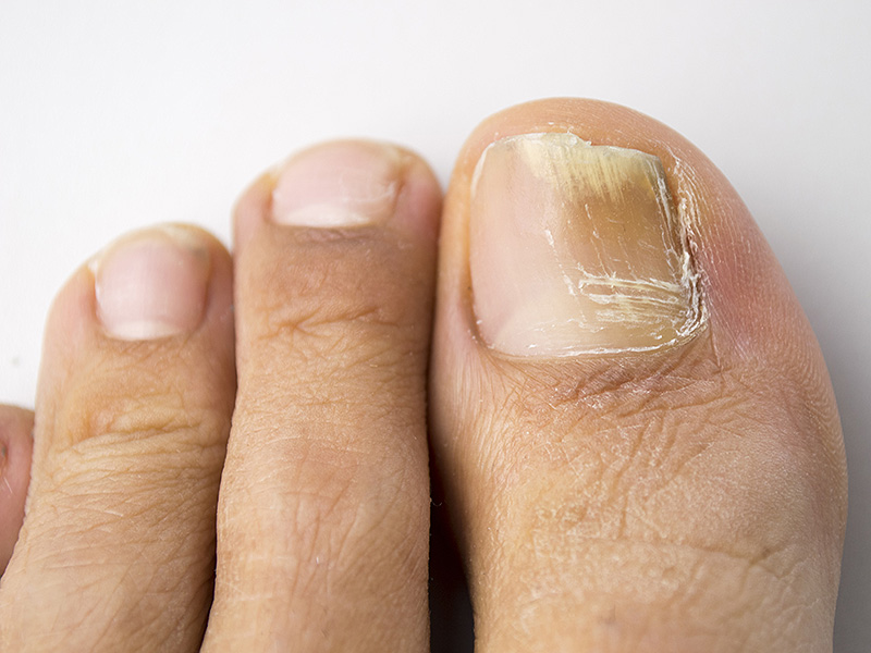 Грибок ногтей на ногах: лучшее средство для лечения,таблетки,эффективные лекарства, отзывы