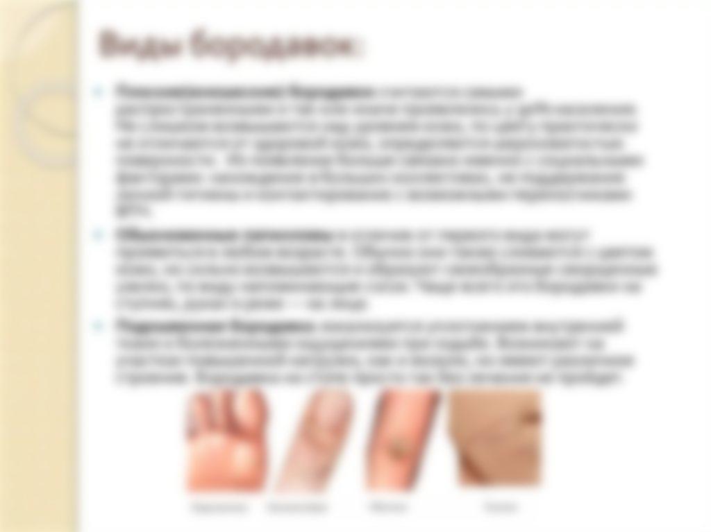 Удаление бородавки на пальце руки 26