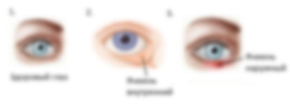 Почему появляется ячмень на глазу: фото, методы лечения и профилактические советы