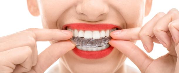 После выравнивания зуба у меня