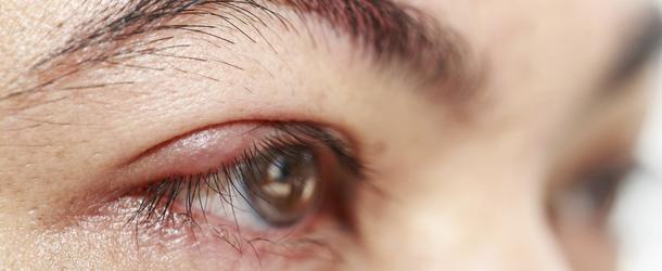 Ячмень на глазу - как быстро лечить ячмень на веке взрослым, детям и беременным дома?