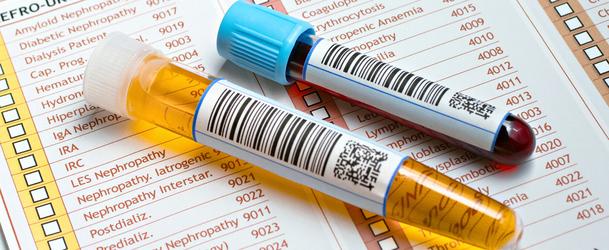 Мочевая кислота в крови повышена: причины, симптомы, лечение