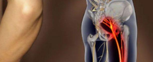 Снятие боли при защемлении седалищного нерва в домашних условиях
