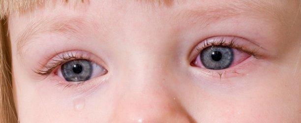 Чем лечить конъюнктивит у ребенка 2 года в домашних условиях: быстро и эффективно