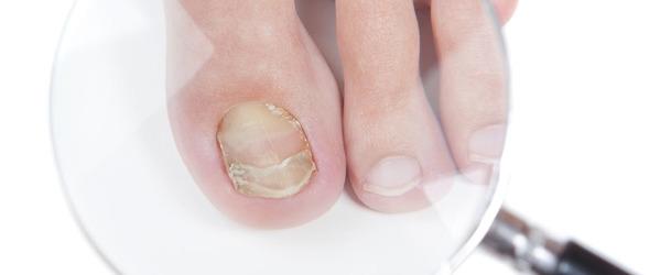 Препараты от грибка ногтей на ногах отзывы